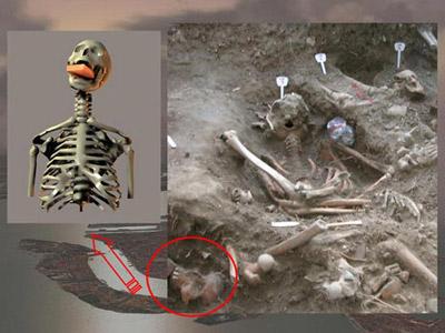 Découverte du squelette du « vampire » de Venise