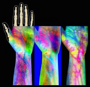 Programme de la NASA permettant d'une manière non invasive d'analyser la peau humaine et sa cicatrisation dans l'espace