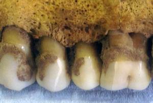 plaque dentaire ADN