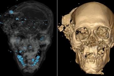 Congrès du British Institute of Radiology