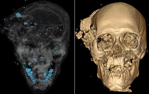Radiologie-forensique